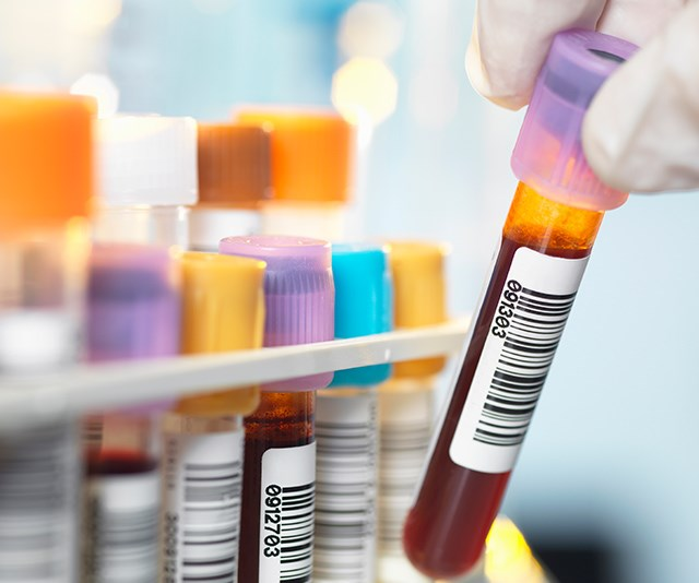 This new melanoma blood test could save thousands of lives