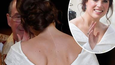 Princess Eugenie opens up about her struggle with scoliosis