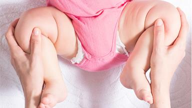 What are clicky hips in babies?
