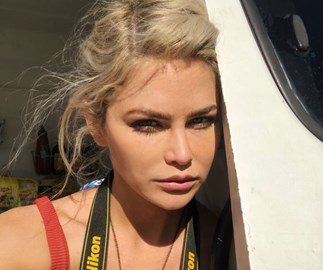 Bachelor In Paradise star Megan Marx's serious warning about cosmetic surgery after botched job