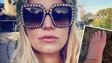 Jessica Simpson turns to the internet for help with her pregnancy swelling