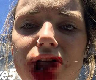 Real life: My abusive ex-boyfriend bit off my lip in a fit of rage