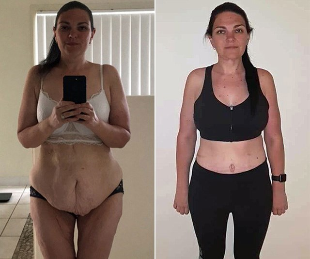 I had excess skin removal after losing 90kg: Here's my story