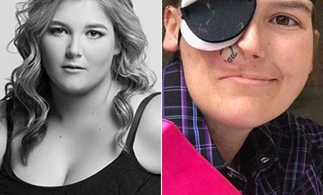 REAL LIFE: I lost half my face to cancer, but it didn't stop me from living my dreams