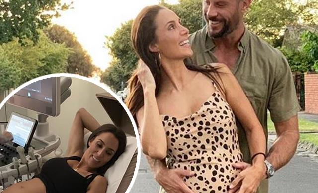 The Bachelor's Sam and Snez just shared an unexpected moment after their ultrasound appointment
