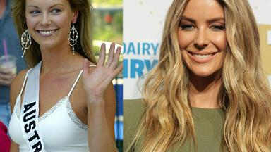 Tiny tweaks: Stars who've had subtle surgery
