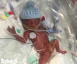 REAL LIFE: Doctors put my premature newborn in a plastic bag