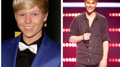 The Voice star Jack Vidgen admits he's had fillers - but denies having surgery