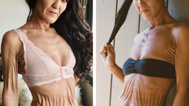 The SHOCKING condition that keeps this body positive model bed bound and unable to eat