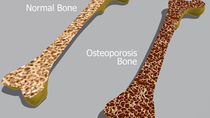 Coping with osteoporosis: Are you doing enough to protect your bones?