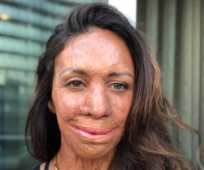 The rare, intimate photos of Turia Pitt taken before the fire that nearly killer her