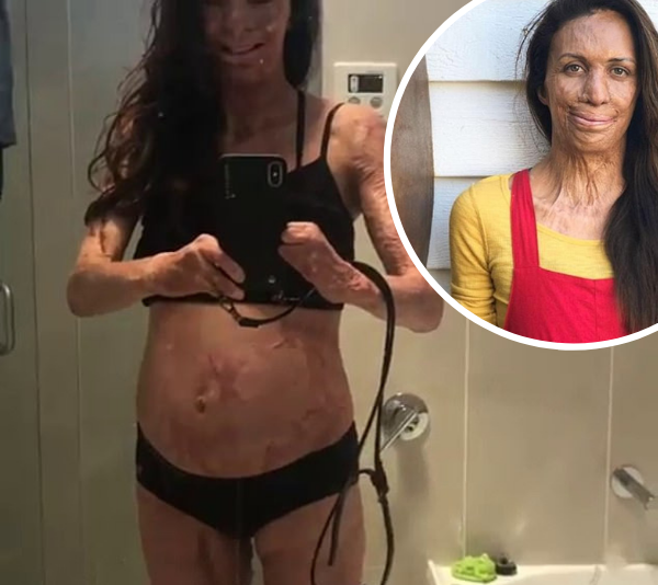 Celebrities inundate Turia Pitt's Instagram with well wishes after she announces second pregnancy