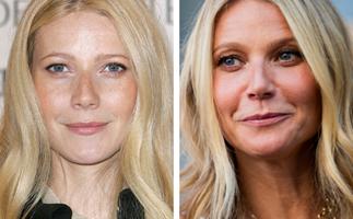 Why Gwyneth Paltrow regrets getting Botox