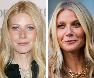 Why Gwyneth Paltrow regrets getting Botox