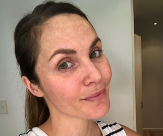 Celebs share their battles with pregnancy pigmentation, melasma