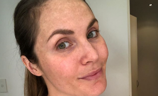 Celebs share their battles with pregnancy pigmentation, melasma