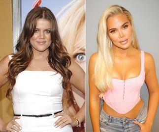 Khloe Kardashian's plastic surgery transformation is worth a whopping $2 million