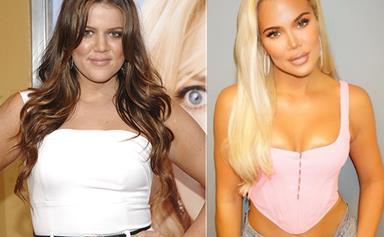 Khloe Kardashian's plastic surgery transformation is worth a whopping $2 million