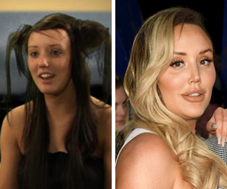 Charlotte Crosby's plastic surgery transformation in photos