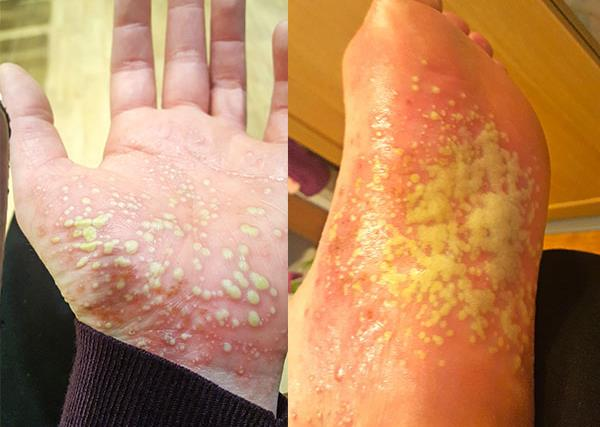 Real life: My psoriasis made my skin fall off and was so painful I couldn't walk