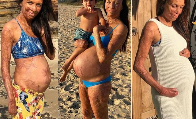 Bumps on the beach! Turia Pitt's beautiful second pregnancy in pictures