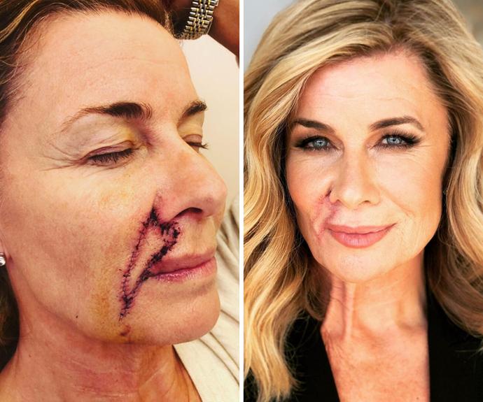 "Deborah Hutton shares a photo update following her frightening health scare: ""I'm healing well"""
