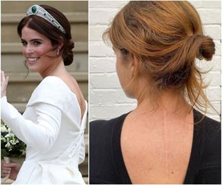 Princess Eugenie shows her scoliosis scar in her most raw and honest Instagram post yet