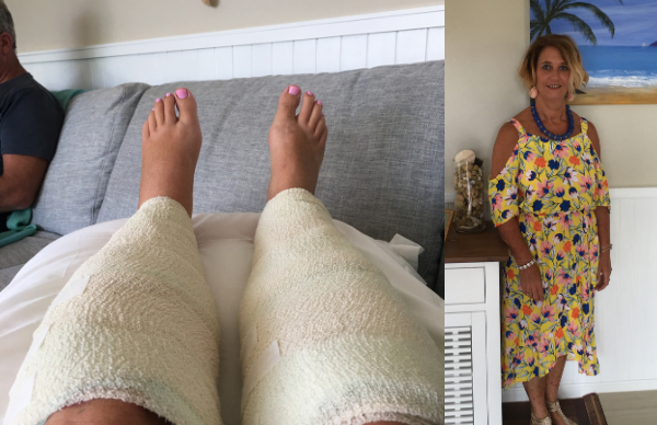 """REAL LIFE: """"An IPL laser treatment left me with second-degree burns"""""""