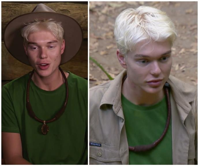EXCLUSIVE CLIP: Jack Vidgen shares the truth about his cosmetic surgery in a tense conversation on I'm A Celebrity