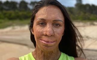 Turia Pitt is breaking down BS beauty standards - her groundbreaking new move is case in point
