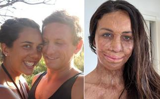 """""""This is what I remember"""": Turia Pitt marks 10 years since the bushfire that changed her life"""