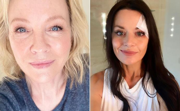 """""""Our best teachers and can be healers as well."""" Rebecca Gibney and Madeleine West proudly share their scars with fans"""