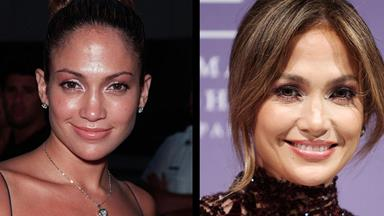 J.Lo: I've never had plastic surgery!
