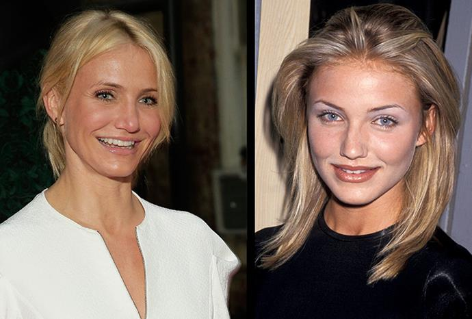 """Cameron Diaz confessed to rhinoplasty but said """"It's not cosmetic, it's purely medical."""""""