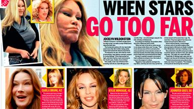 Plastic surgery: When stars go too far