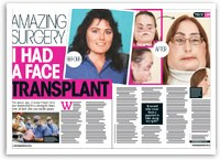 Amazing surgery: I had a face transplant