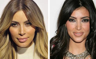 Kim Kardashian's hairline tips to staying young