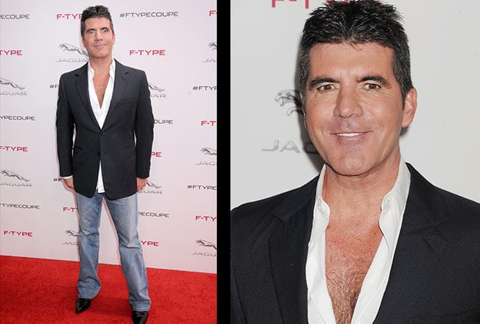 About face: Simon seems to have overdone the botox.