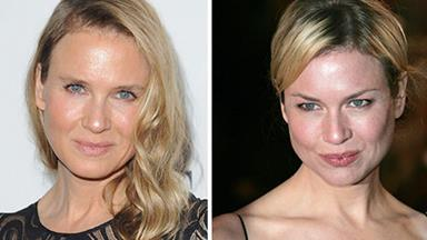 Renee Zellweger's unrecognisable new face