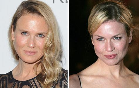 Renee Zellweger's unrecognisable new face
