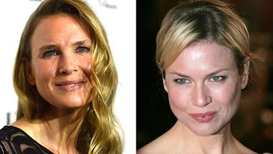 "Renee Zellweger: ""I'm glad folks think I look different"""