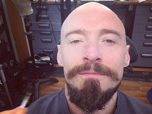 Earlier this year, Hugh proudly showed off the bald head and pirate beard that he adopted for a role as Blackbeard in the newest film adaptation of the classic Peter Pan story.