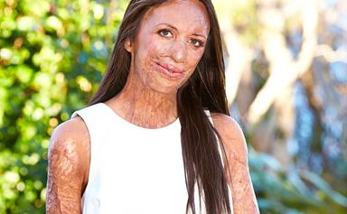 Turia Pitt's triumph: I've finally got my NEW NOSE!