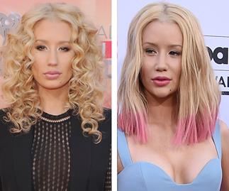 Iggy Azalea confirms she had a nose job: 'Denying it is lame'