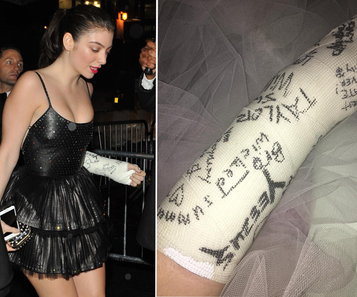 """She took to Instagram later that night to reveal she had collected several celebrity signatures on her cast, posting this picture alongside the caption: """"If u ever wanna know who was at the 2016 met gala they're all on my arm."""""""