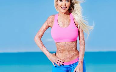 Meet brave burns survivor Dana Vulin