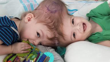 Mother of conjoined twins holds separated son for the very first time