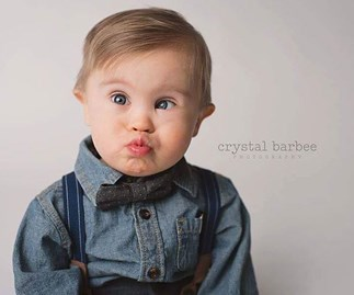 Down syndrome baby wins modelling contract after viral campaign