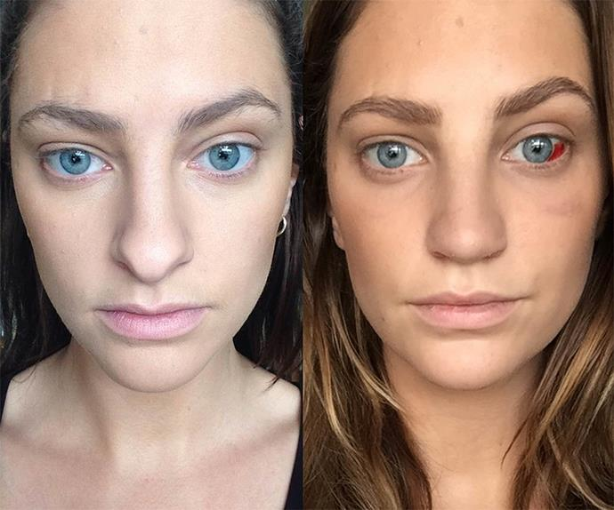 """""""Two weeks post opp #BeforeAndAfter (mind the different lighting)."""""""