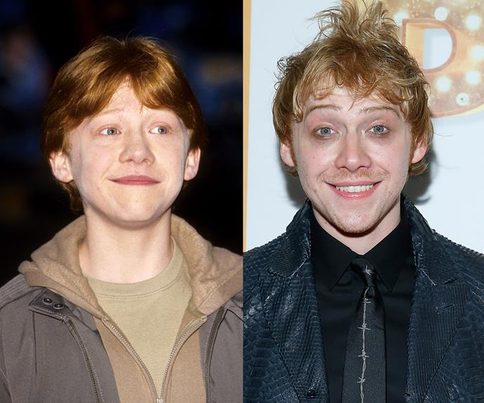 Remember the bright-eyed wise-cracking protagonist Ron, Harry's best mate? No longer 11, Rupert Grint has become one of the most widely recognized young adults. Since Potter, he has stayed mostly away from film roles, and opts for theatre shows instead, as well as the now infamous cameo in Ed Sheeran's music vid.